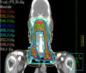 Dieses Bild zeigt Nasopharynx-Ca mit VMAT-Technik coronale Sicht.