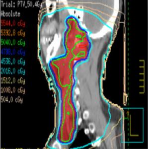 Dieses Bild zeigt Nasopharynx-Ca mit VMAT-Technik sagitale Sicht.