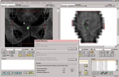 Dieses Bild zeigt die Überlagerung und den Vergleich des Bestrahlungsfelds mit dem Planungsfeld mittels Goldmarker.