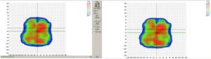 Hier sieht man, wie schon bei der IMRT gezeigt, auf dem rechten Bild eine gerechnete, und auf dem linken Bild die dazugehörige, am Bestrahlungsgerät, gemessene Dosisverteilung. (Software SNC Patient V.6.6.0, Fa. Sun Nuclear)