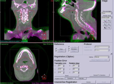 Dieses Bild zeigt die Darstellung der Überlagerung vom Planungs-CT und am Gerät angefertigten ConeBeam-CT.
