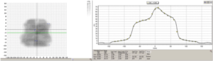 Hier ist im linken Bild der Vergleich beider Dosisverteilungen zu sehen. Auf dem rechten Bild sieht man ein Profil der gerechneten Dosisverteilung (in der Ebene des grünen Strichs) und die Punkte der gemessenen Verteilung (gelbe Punkte). (Software SNC Patient V.6.6.0, Fa. Sun Nuclear)